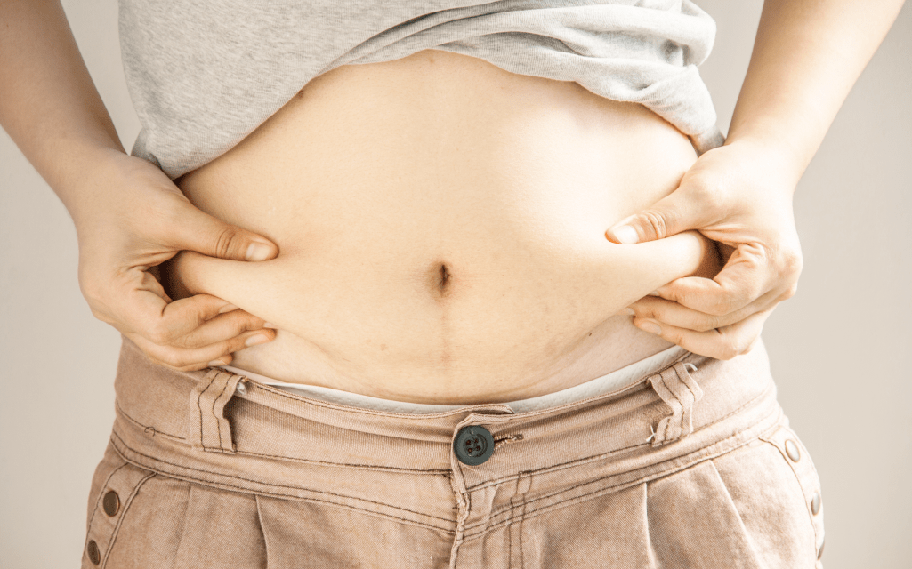 Benefits of Liposuction