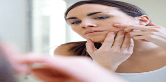 Tips to Quickly Get Rid of Pimples