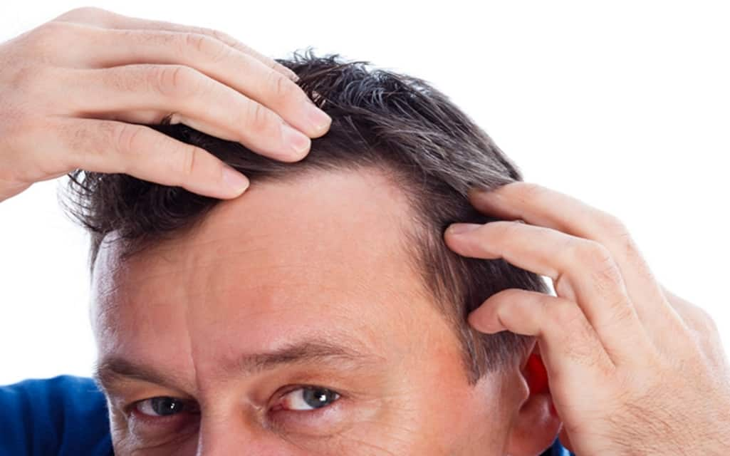 Therapy for Hair Loss