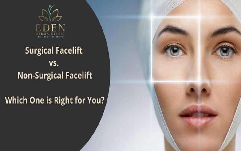Surgical Facelift